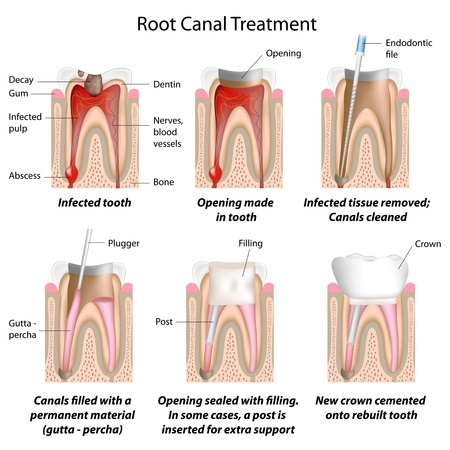 dental travel root canal therapy