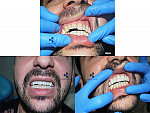 dental samples